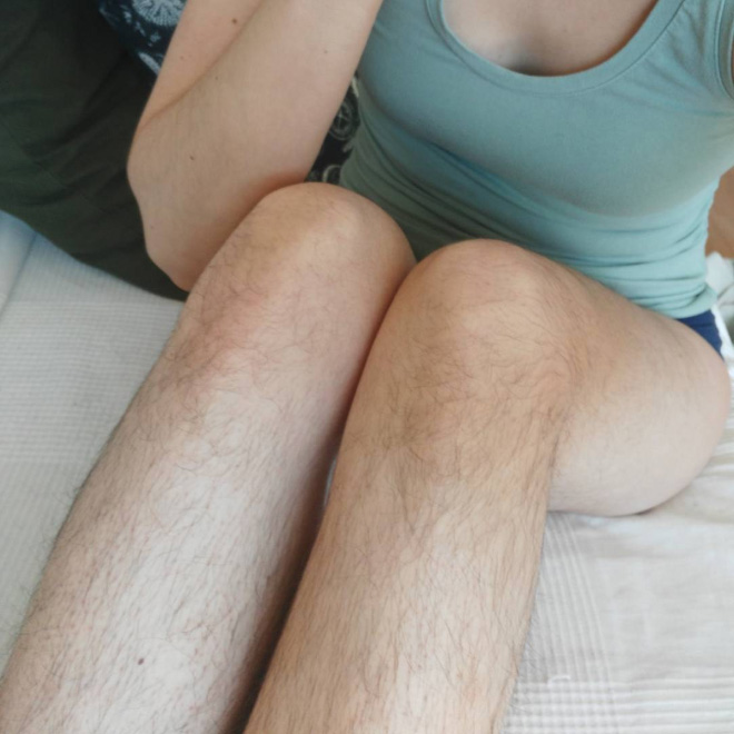 Pictures of women with hairy legs