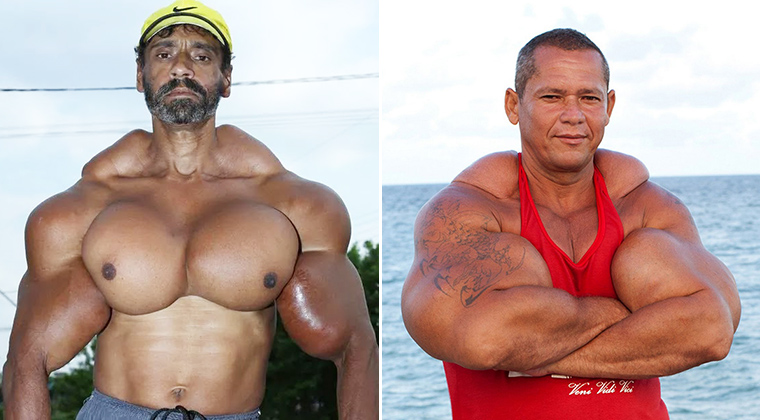 The Weird World of Synthol Bodybuilders